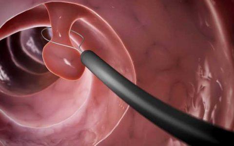 Colonoscopía Digestiva